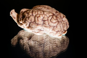 A sheep's brain used by Robin Willenbring as part of her work with Brainwaves.
